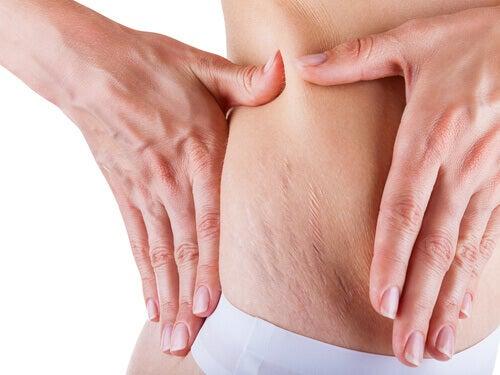 Най-често засегнати от стриите са корема, гърдите и задните части