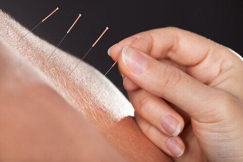 3-akupunktura