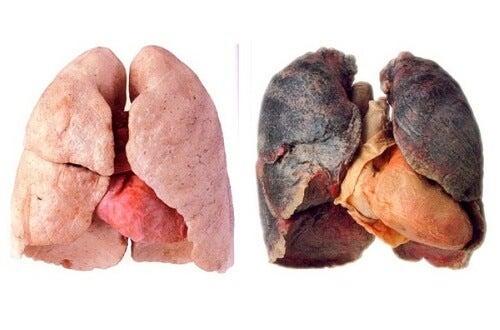 Съвети за по-чисти бели дробове