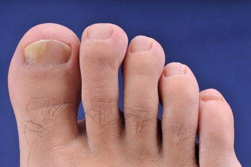 Домашни средства при онихомикоза (ръце и стъпала)