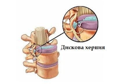 Симптомите на дискова херния (дископатия)