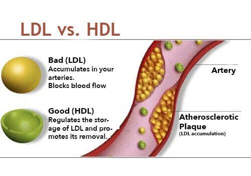 задържането на прекалено много лош холестерол е сред нещата, които увреждат черния дроб