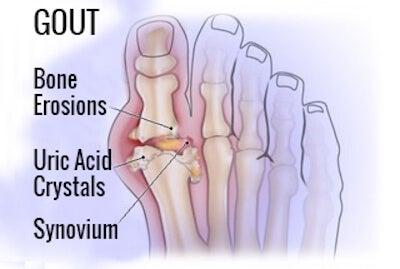 лечение на артрит - подаграта също спада към тази коварна болест