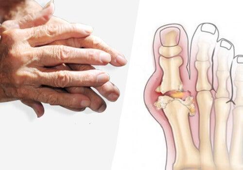 Овес за облекчаване на артрит