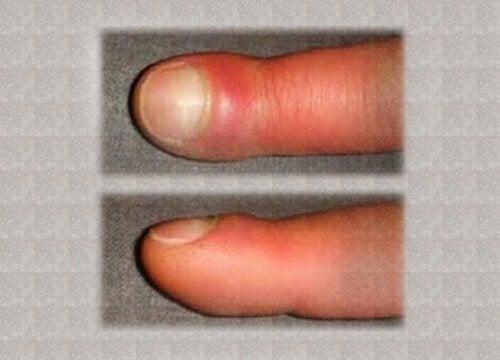 Подуване на пръстите