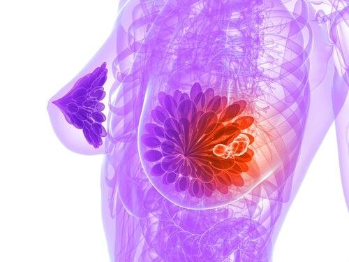 освен срещу запек, лененото семе се бори и с възпалителните процеси в организма