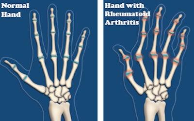 консултирайте се с лекар, преди да пристъпите към лечение на артрит