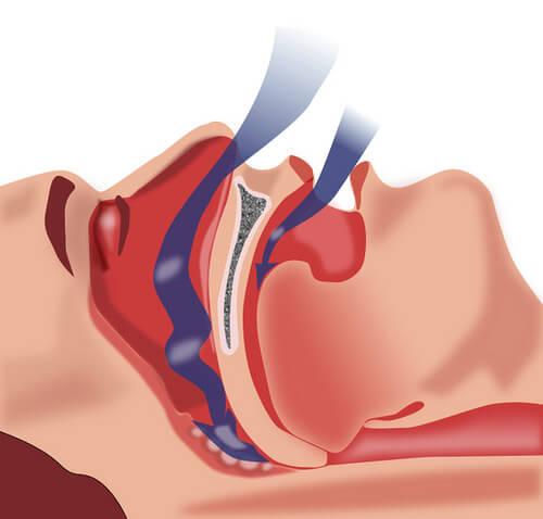 Лечение на  сънната апнея
