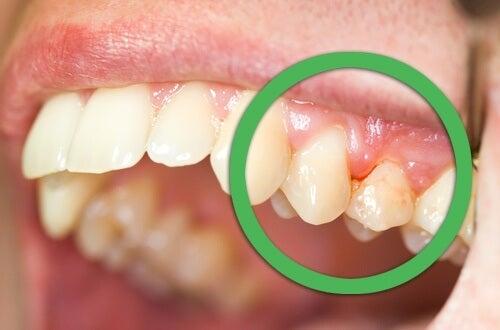 Естествени начини за лечение на възпаление на венците