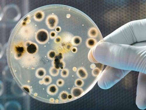 Видове бактерии върху парите