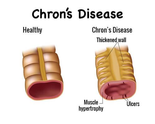 Болест на Крон: симптоми и лечение