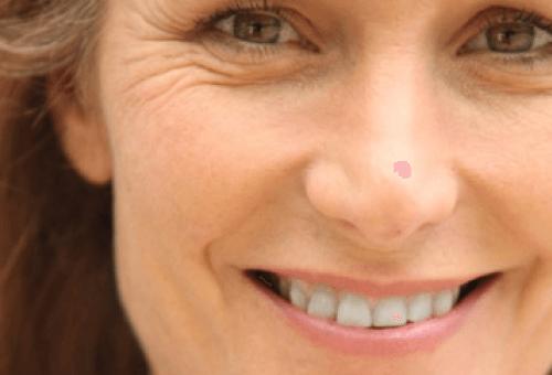 причини за появата на бръчки