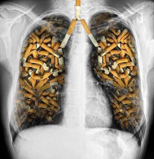 Последствия от цигарите