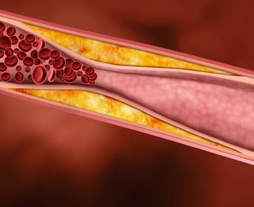 регулиране на холестерола