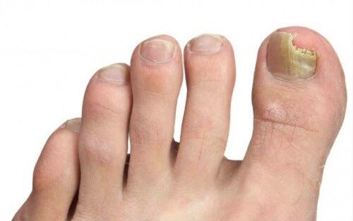 Как да предотвратим появата на гъбички по краката