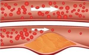 rasteniya holesterol