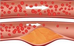 Растения, понижаващи холестерола