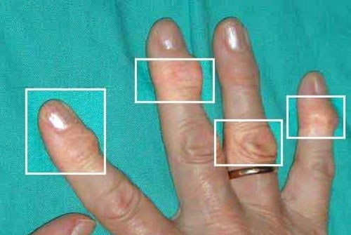 Природни лечения за артрит