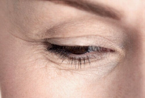 Как да се отървем от бръчки под очите