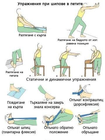 полезни упражнения при шипове в петите