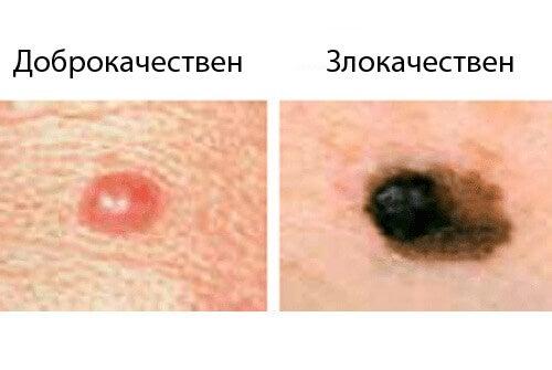 Злокачествен рак при жените