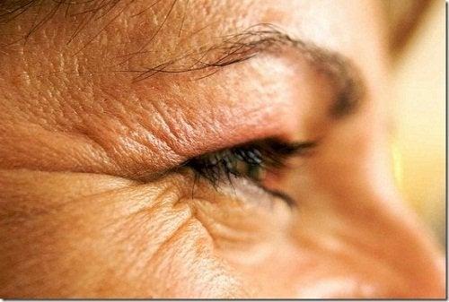 витамин Е е ефикасен против бръчките около очите