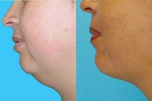 Отстранете двойната брадичка без операция