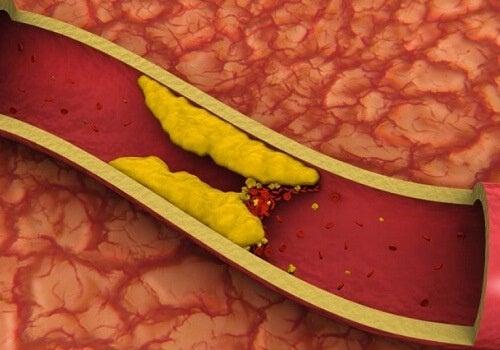 Сокове за нисък холестерол