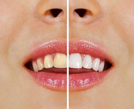 Начини за избелване на зъбите с натурални продукти