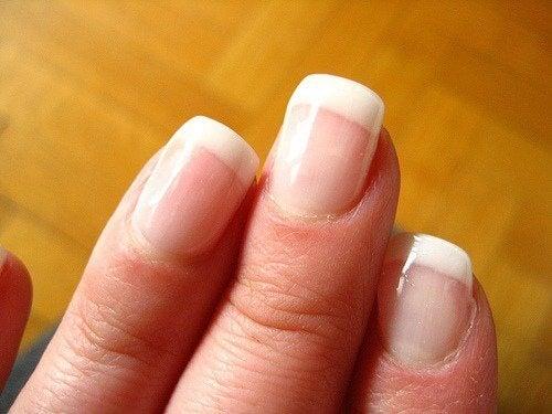 когато нашите нокти са обезцветени