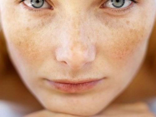 Магданоз при тъмни петна или пъпки на кожата