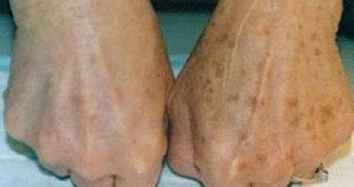 Как да заличим петната по кожата