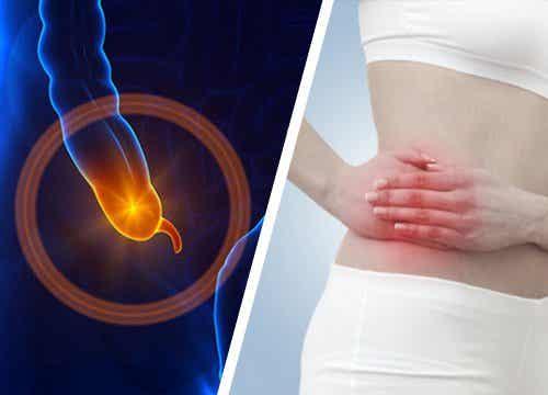 Как да разпознаем симптомите на апендицита