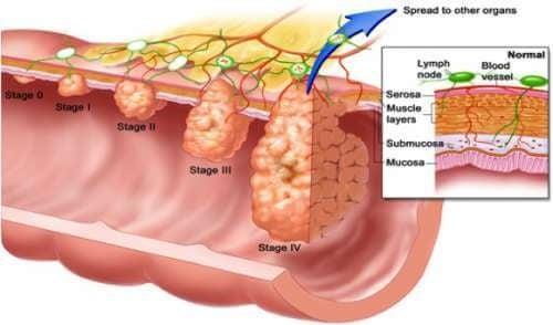 Откриването на полипи на дебелото черво става чрез колоноскопия.