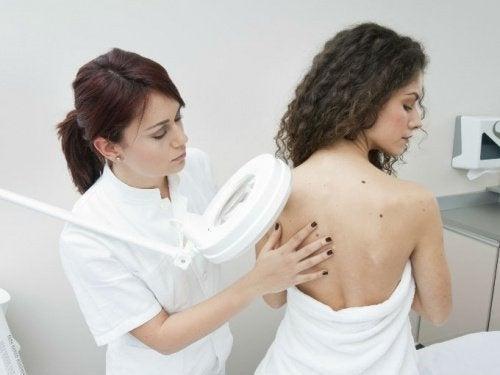 появата на нови бенки е един от сериозните 7 симптома при жените