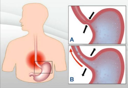 Паренето е един от характерните симптоми на киселинния рефлукс.