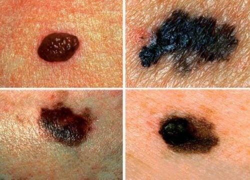 Предупредителни знаци за рак на кожата.