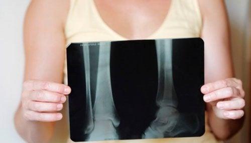 Как мога да се излекувам от остеопороза