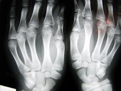 Пръстите ви и рискът от остеоартрит