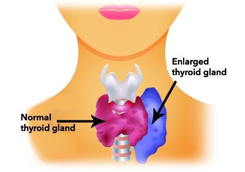 За регулиране на щитовидната жлеза при хипертиреоидизъм високоенергийни храни.
