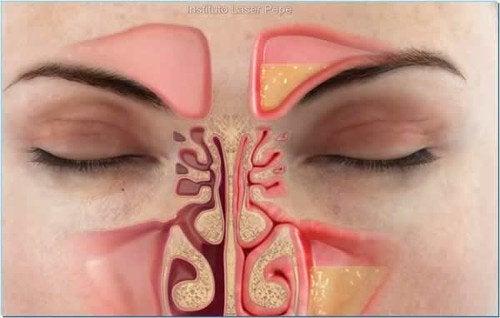 Как да облекчим запушването на носа за по-малко от минута