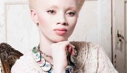 Албинизъм: Трогателната борба на модела Тандо Хопа