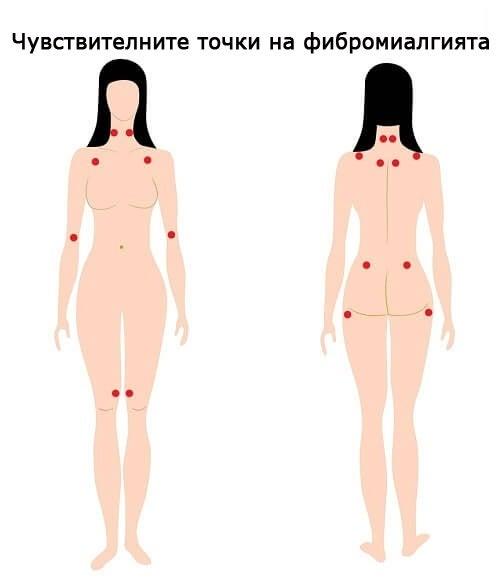 Облекчете симптомите на фибромиалгията с природни средства