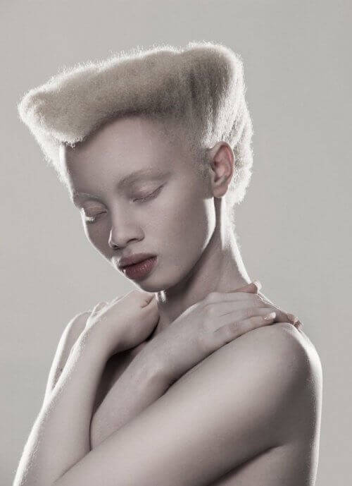 Тандо Хопа е 24-годишен модел, родена с албинизъм