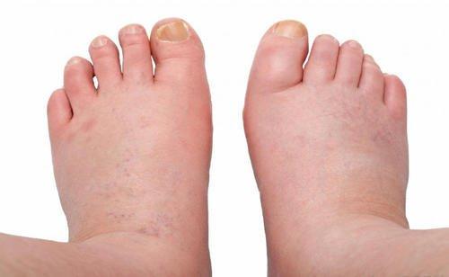 6 средства срещу подуване на глезените, стъпалата и краката