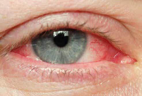 Природни начини за облекчаване на раздразнени очи
