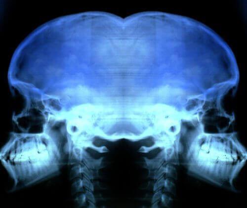Лечение и предпазване от остеопороза
