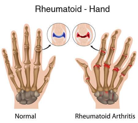 revmatoiden artrit