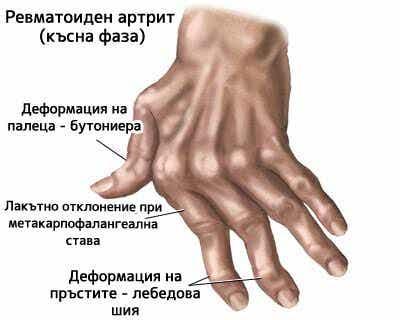 7 природни лека при артрит на ръцете