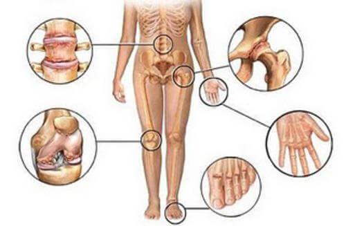 5 природни противовъзпалителни средства за болки в ставите